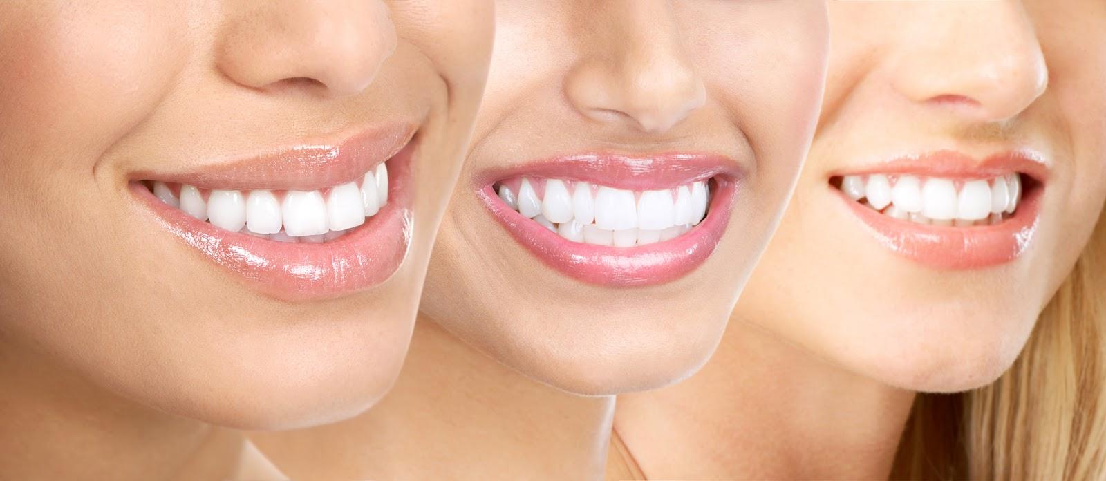Cara Tepat Merawat Gigi   Gusi Agar Tetap Sehat Dan Putih Mengkilap ... 8a67166223